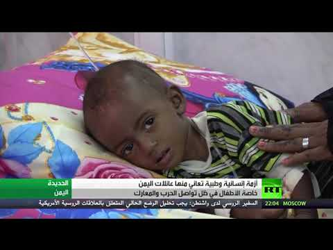 شاهد آلاف الأطفال اليمنيين يعانون سوء التغذية