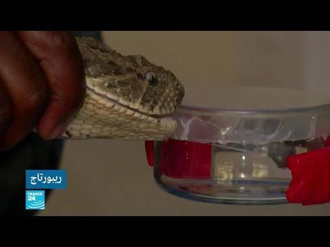 مركز بحثي في نيروبي يحاول ابتكار أول مضاد للدغات الثعابين في شرق أفريقيا