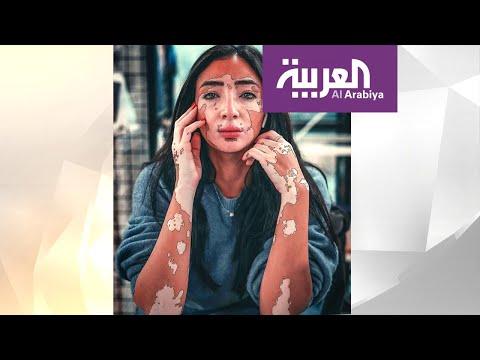 مدونة مصرية حولت إصابتها بالبهاق إلى نجاح